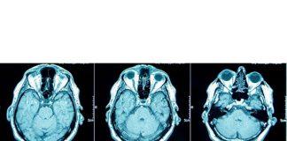 تشخیص زودرس، کمک به درک بهتر در بازیابی خاطرات - پرستاری - پزشکی - مراقبت از سالمندان - بیماری