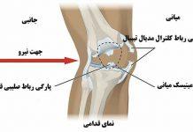 پارگی مینیسک زانو | پارگی مینیسک زانو علائم و عوارض | آسیب دیدگی زانو و منیسک زانو | اطلاعات پزشکی طب لاین
