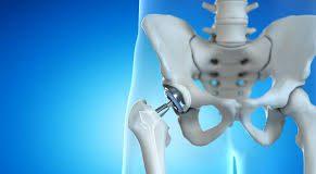 جراحی مفصل لگن و ران - کادر درمان طب لاین - فیزیوتراپی عمل جراحی