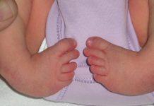 مسائل ارتوپدی و جراحی نوزاد_پاچنبری - کادر درمان - متخصصین علوم پزشکی