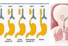 آترزی مری در نوزادان - پرستاری - متخصصین علوم پزشکی - سونوگرافی - بارداری