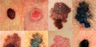 سرطان پوست - سرطان پوست - پرستاری - پزشکی - درمان - سلول های پوستی