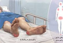 بیماری زخم بستر - آسیب بافتی - پرستاری - کادر درمان - پزشکی