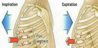 شکستگی دنده - پرستاری - پزشکی - علوم پزشکی طب لاین