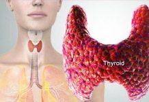 تیروئیدیت حاد در ارتباط با عفونت اریتروویروس B19 | ایمونوگلوبولین | اطلاعات پزشکی طب لاین