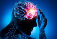 اختلالات تشنجی - درمان اختلالات تشنجی - متخصصین علوم پزشکی - پرستاری طب لاین