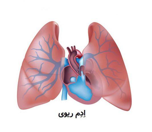 بیماری ریوی - گروه کادر درمان پرستاری و متخصصین علوم پزشکی و داروشناسیطب لاین - خون - کاهش اکسیژن خون - نارسایی سمت چپ قلب