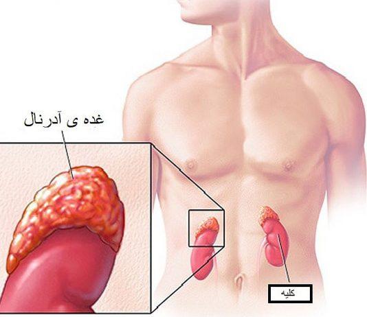 سندروم کوشینگ   اثرات هورمون کورتیزول یا همان کورتیکواستروئید در غده فوق کلیوی   اطلاعات پزشکی طب لاین