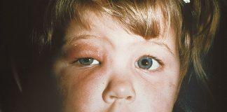 انواع سلولیت های چشمی - گروه کادر درمان بیماری و متخصصین علوم پزشکی و پرستاری طب لاین