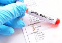آنزیمهای قلبی
