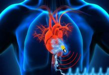 پیس میکریا ضربان ساز قلب | اندیکاسیون پیس میکر و دیس ریتمی | اطلاعات پزشکی طب لاین
