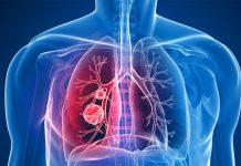 پنوموتوراکس - گروه کادر درمان پرستاری و پزشکی طب لاین - ریه