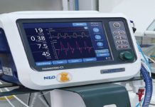 دستگاه تهویه مکانیکی یا ونتیلاتو ممکن است در تنفس خود به خودی را مختل کند. نکات جداسازی دستگاه ونتیلاتور در بخش مراقبت ویژه سایت اطلاعات پزشکی طب لاین - جداسازی از ونتیلاتور