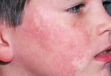 عفونت تینئا - گروه کادر درمان بیماری و متخصصین علوم پزشکی و پرستاری طب لاین - پزشک - قارچ پوستی