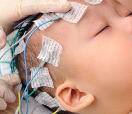 تشنج در نوزادان