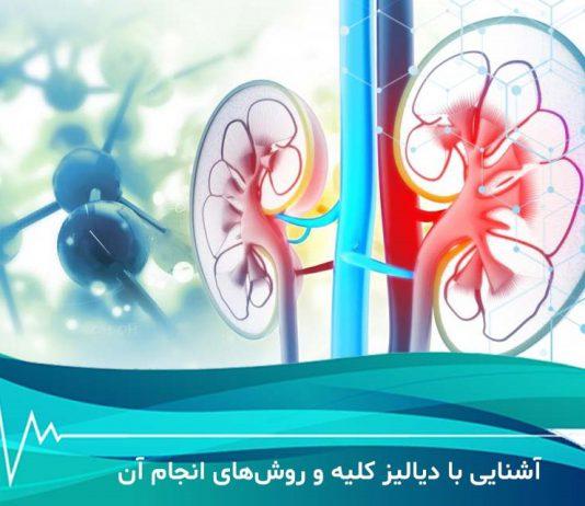 دیالیز - پزشکی