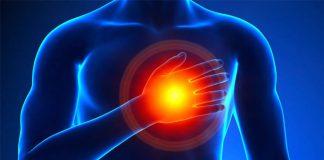آنژین یا حملات قلبی - کادر درمان طب لاین - پزشکی - آنژین یا حملات قلبی