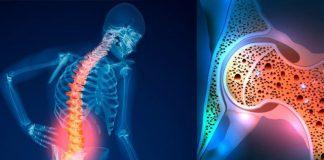 پوکی استخوان - پزشکی - درمان پوکی استخوان - ستون فقرات - مفصل ران