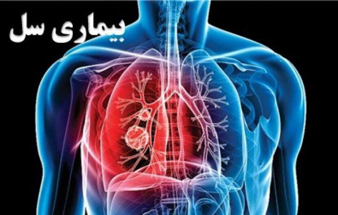 بیماری سل - پرستاری - کادر درمان - پزشکی