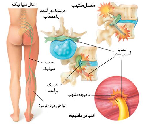 سیاتیک - کادر درمان طب لاین - پرستاری - پزشکی - بیماری رادیکولوپاتی