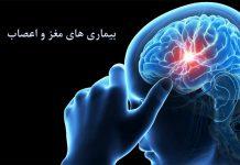 درمان - پزشکی - مغز و اعصاب - نورولوژیست - متخصص مغز و اعصاب