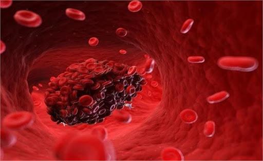 اختلال لخته شدن خون - پزشکی - رگهای بدن - سیستم گردش خون