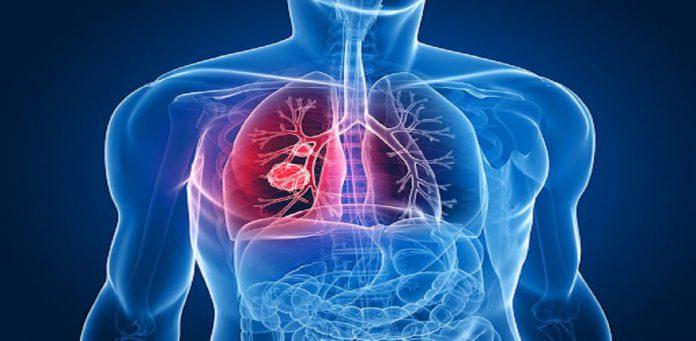 عفونت دستگاه تنفسی - درمان و علائم - گروه کادر درمان پرستاری و پزشکی طب لاین