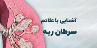 علائم سرطان ریه - درمان و علائم - گروه کادر درمان پرستاری و پزشکی طب لاین - علائم سرطان ریه
