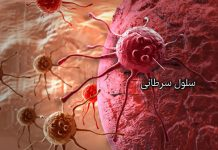 سرطان مغز - متخصصین طب لاین - علوم پزشکی - بیمار - سرطان مغز