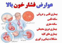 علائم فشار خون بالا - پزشکی - کادر درمان - بیماری های قلبی - هایپرتنشن - علائم فشار خون بالا